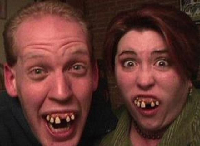 7. We all have missing teeth.