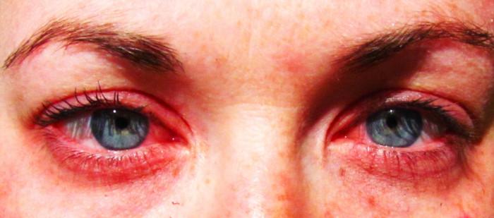4) Allergy season will almost kill you.