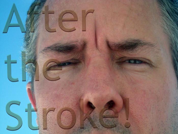 3. Strokes