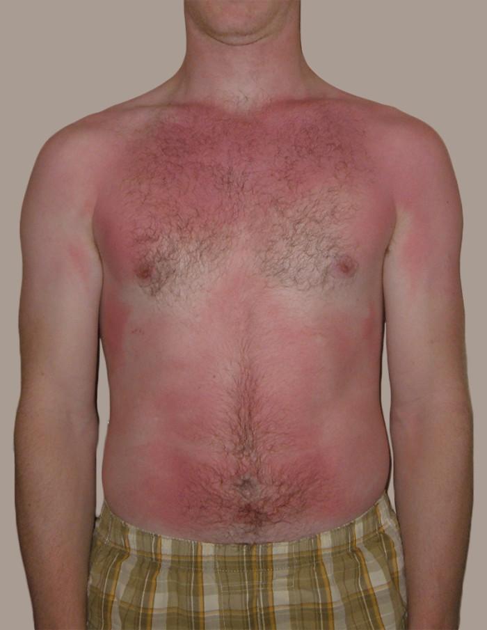 1) Sunburn