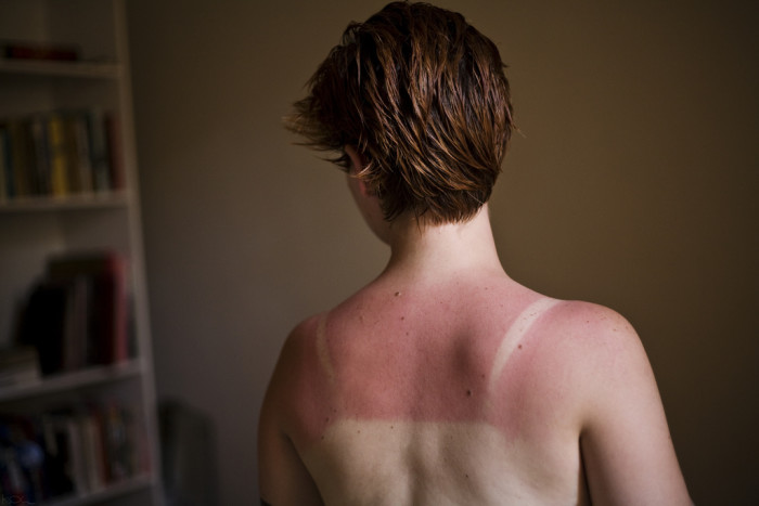 6. You've paid the price for a day at the beach with a killer sunburn.