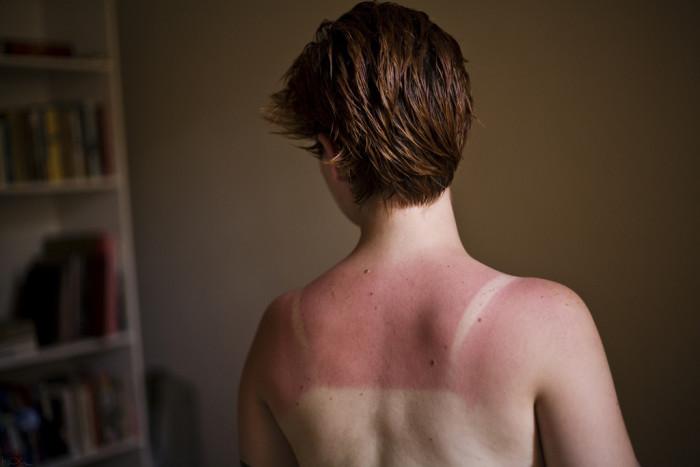 3) Sunburn