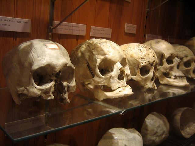 8. The Mütter Museum in Philadelphia