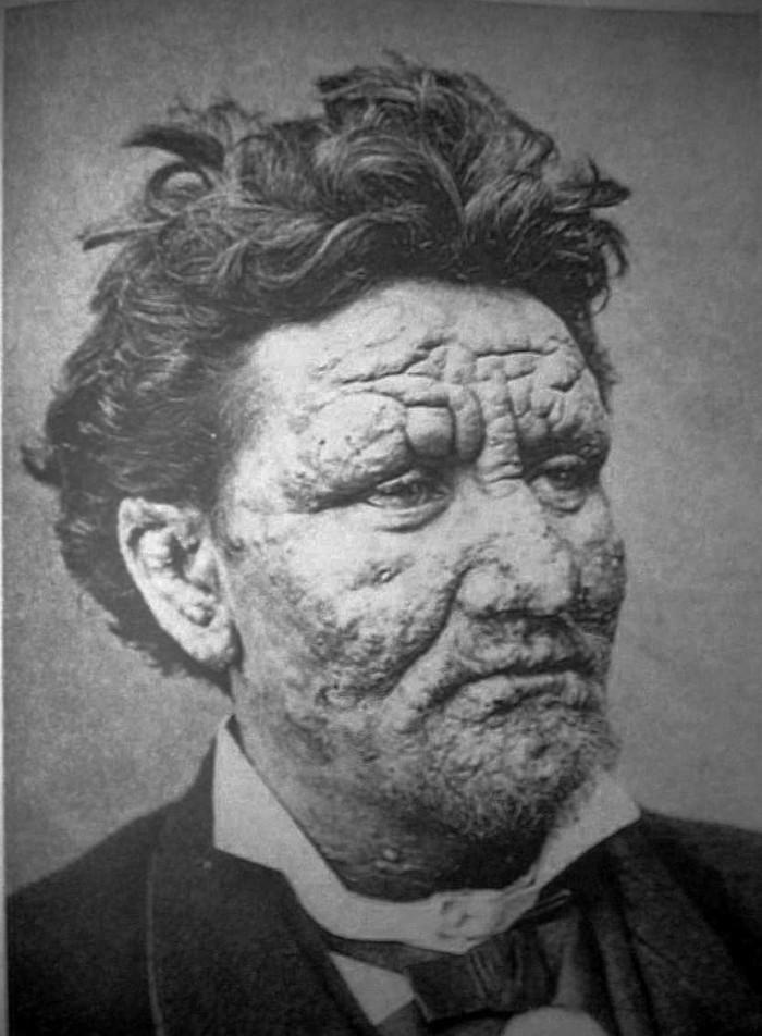 4-Leprosy