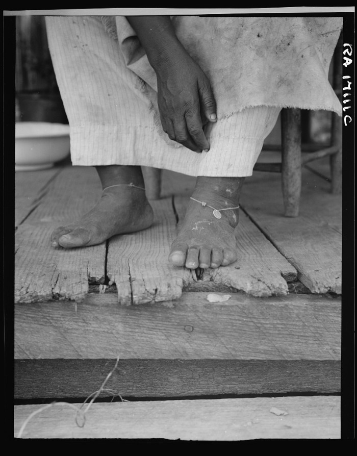 14. A 57-year-old female sharecropper utilizes the folk remedy of tying dimes around here ankles in an effort to prevent headaches.