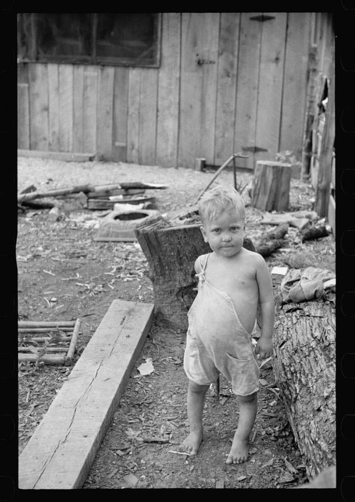 6. Malnourished Child