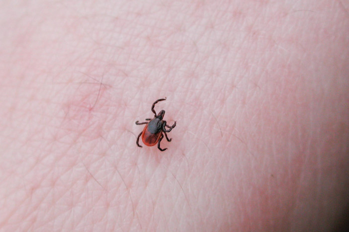 6. Check for ticks and apply ample bug spray in the summer.
