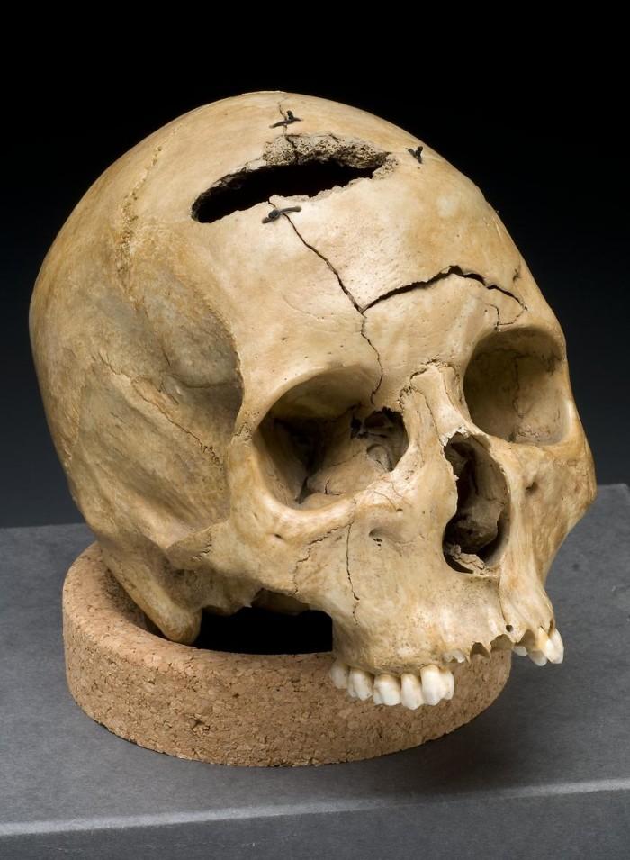 4. Gunshot_skull_civil_war