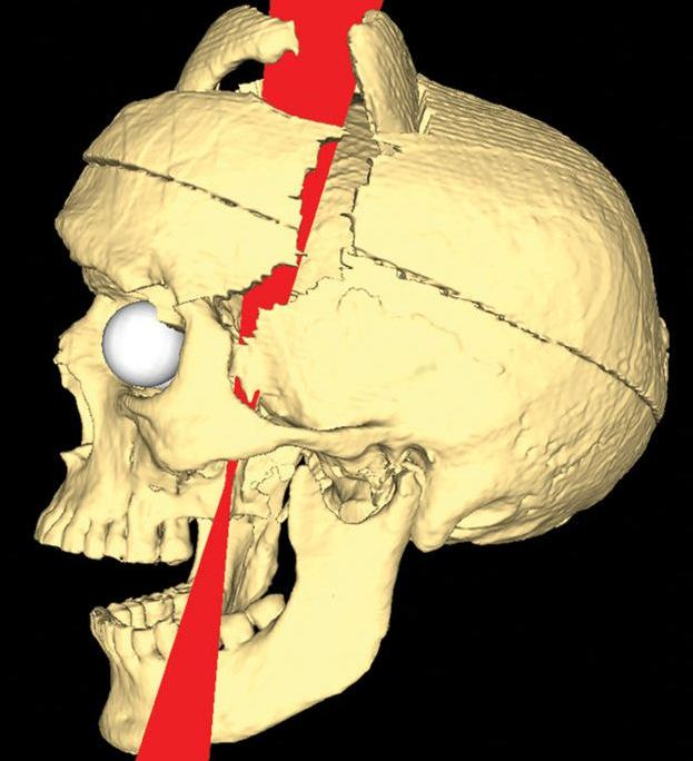 Phineas gage paper