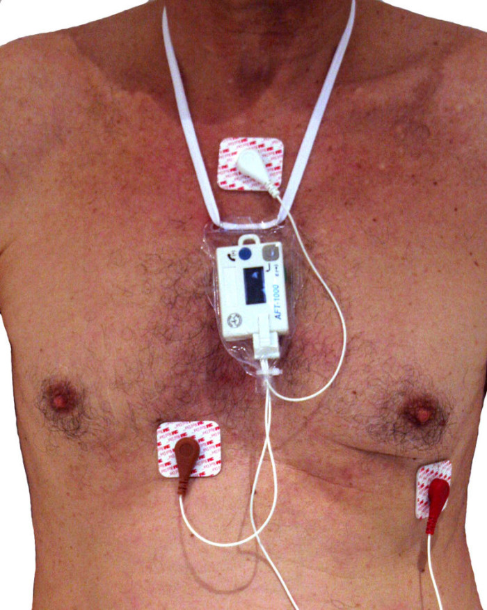 3. We invented the heart monitor.