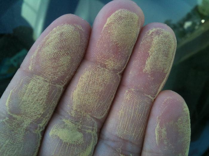 3. Allergy season