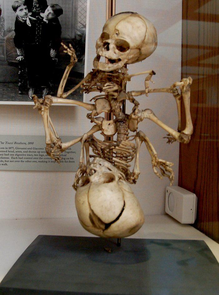 4. Warren Anatomical Museum, Boston