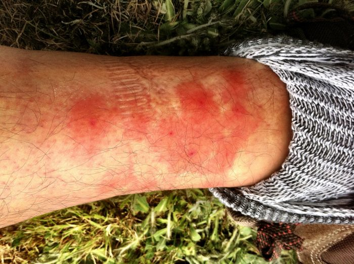 8. Black flies and mosquitoes.