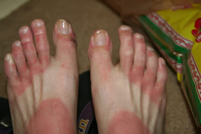 10. If you go out day drinking on Cinco de Mayo and forget to wear sunscreen...