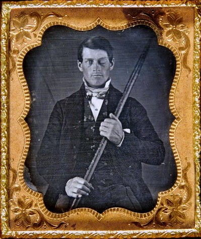 This is the unbelievable story of Phineas Gage.