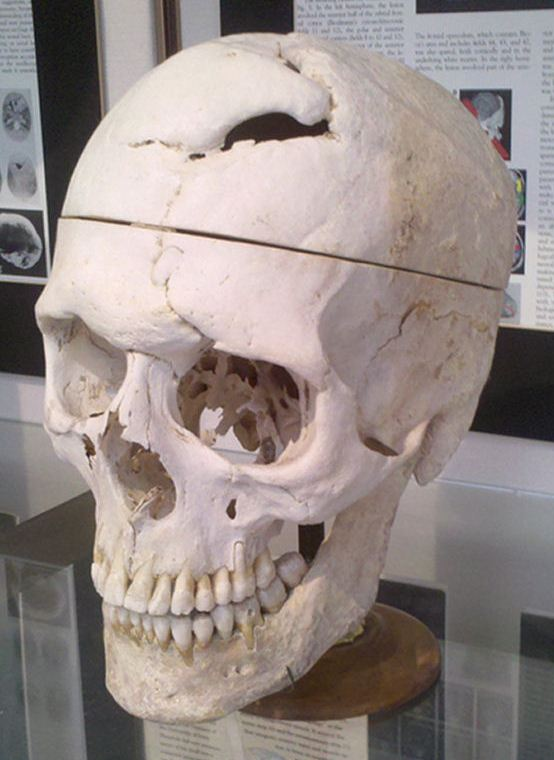 Gage's skull is now housed within the Harvard Medical School's Countway Library of Medicine.
